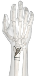 implant_in_hand_24aug2012_webready