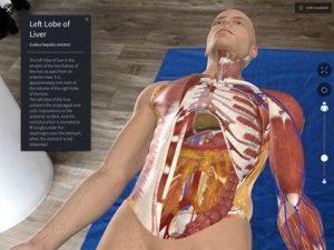 3D4Medical